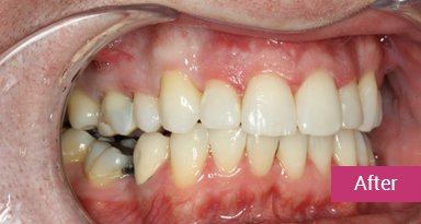 Invisalign Treatment after 1
