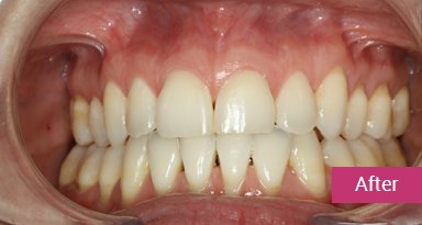 Invisalign Treatment After 10