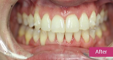 Invisalign Treatment after 4
