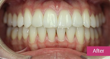 Invisalign Treatment After 5