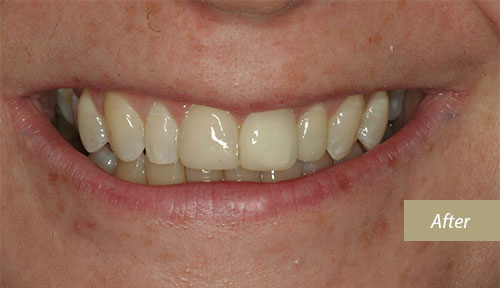 Invisalign after 8