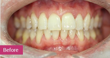 Invisalign Treatment Before 4