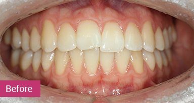 Invisalign Treatment Before 5