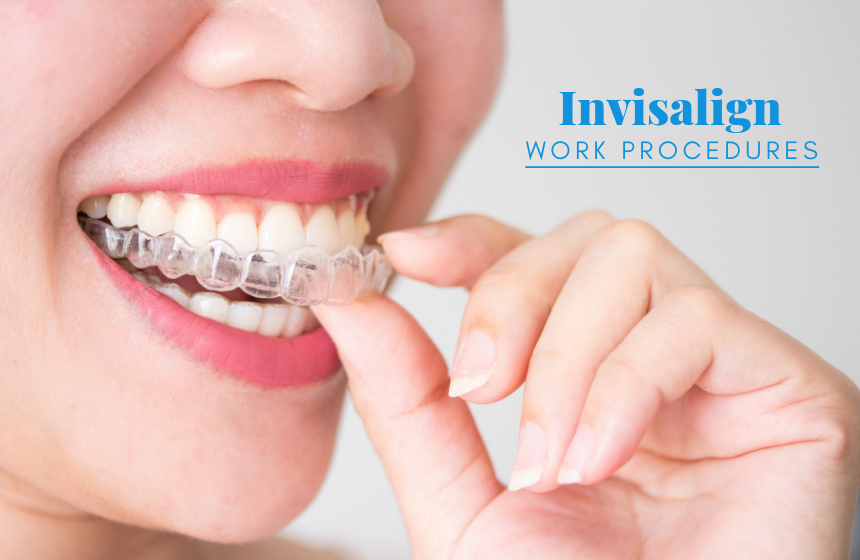 How Does Invisalign Work? Your Guide To Invisible Teeth Straightening