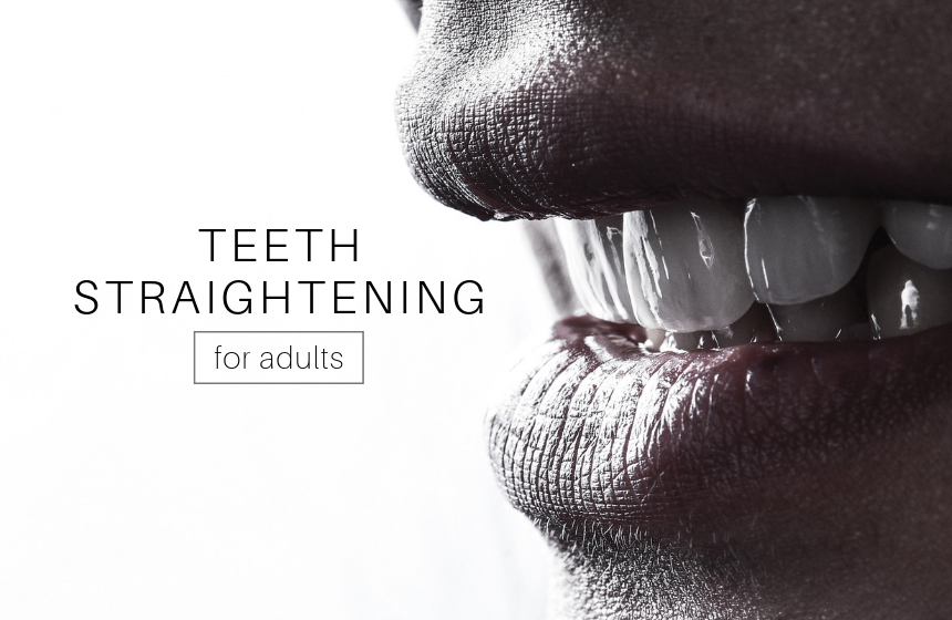 Teeth Straightening for Adults