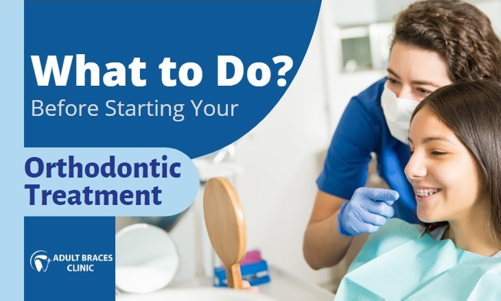 What to Do Before Starting Your Orthodontic Treatment