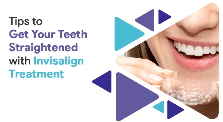 9 Tips to Get Your Teeth Straightened with Invisalign Treatment