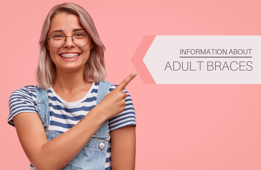 Everything You Need to Know about Braces for Adults