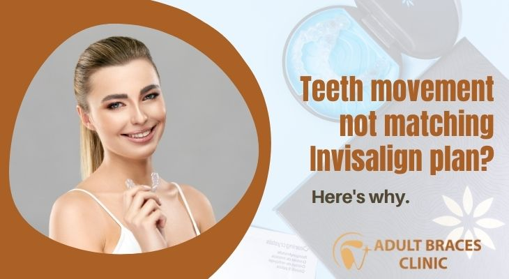 Reasons Why Your Teeth Does Not Move Following Invisalign Treatment