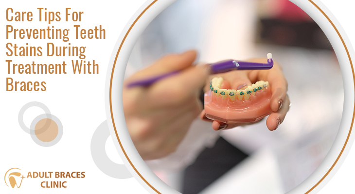 Care Tips For Preventing Teeth Stains During Treatment With Braces