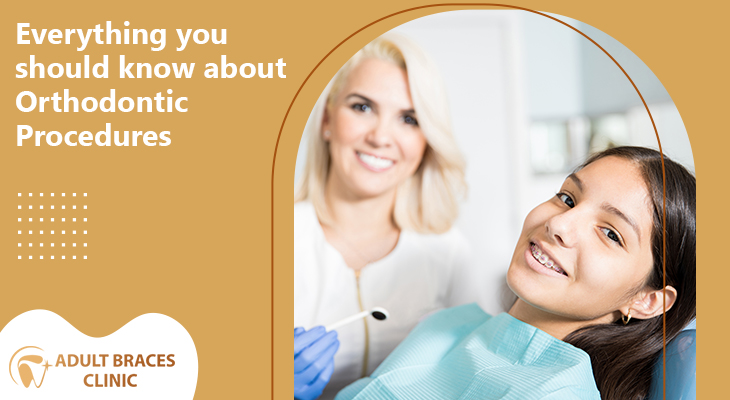 Everything You Should Know About Orthodontic Procedures